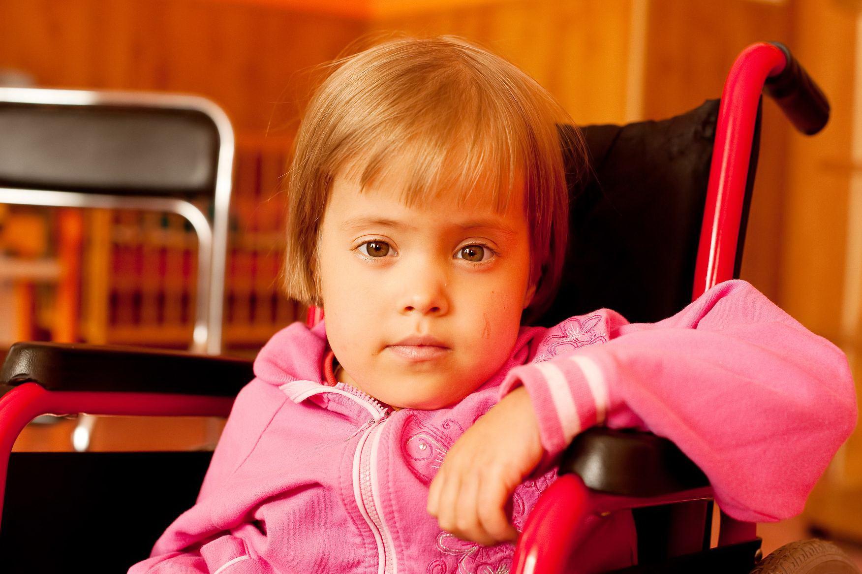 Фото детей с диагнозом