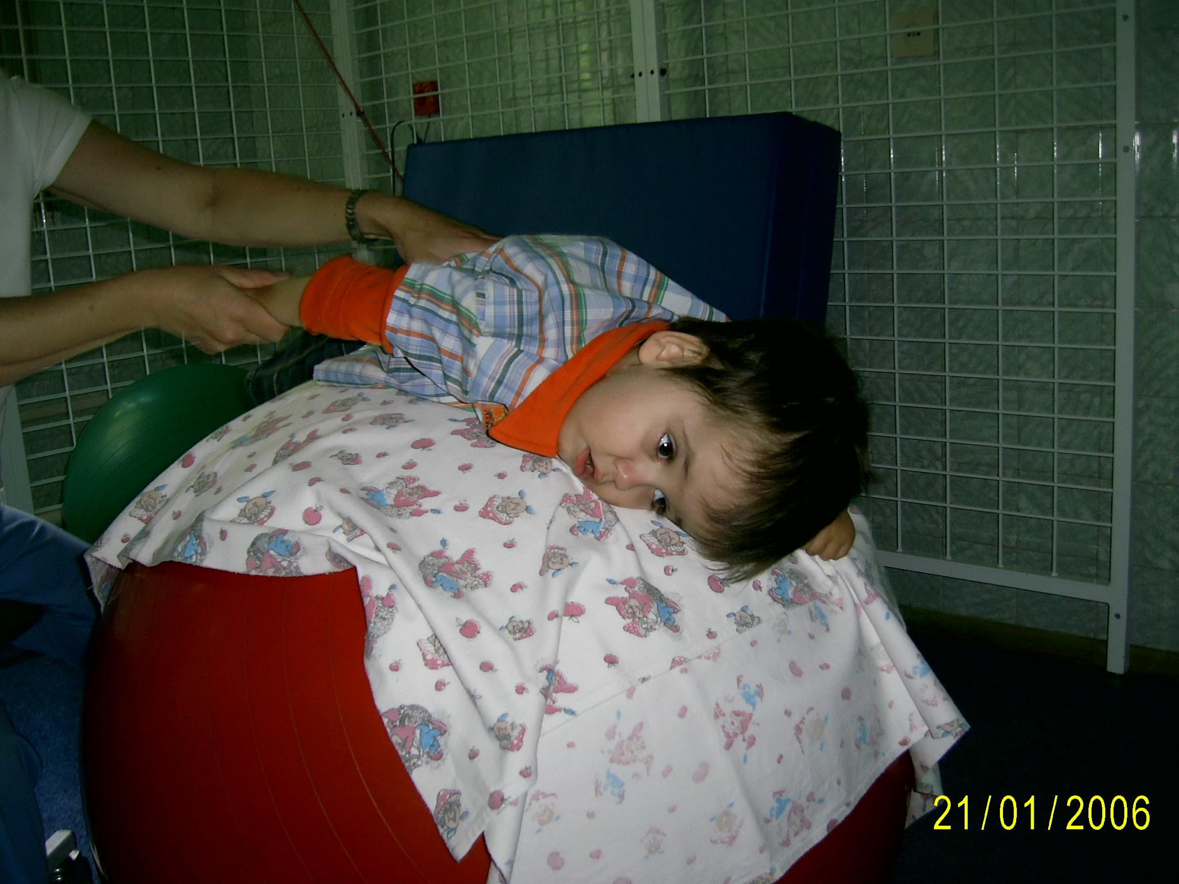 Спастический тетрапарез у детей что это такое фото